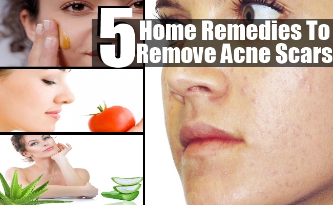 Remedies To Remove Acne Scars