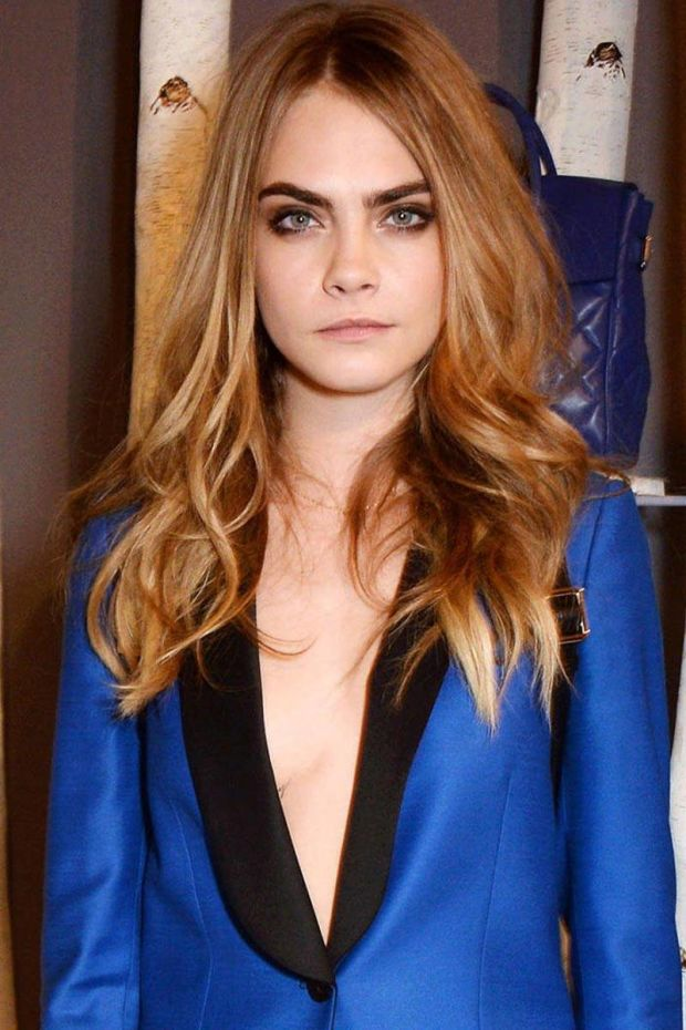 Cara Delevingne is inspiring a new wave of eyebrow surgery.