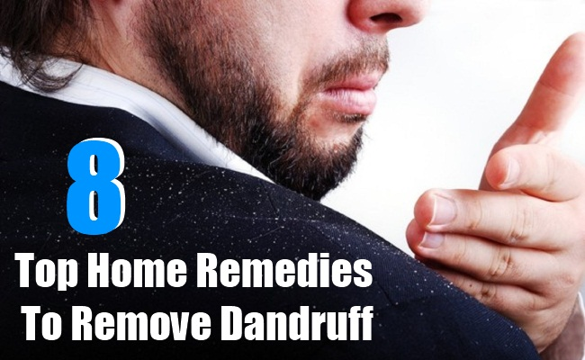 Home Remedies To Remove Dandruff