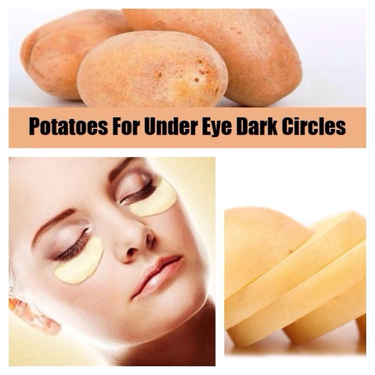 potatoes for dark eye circles