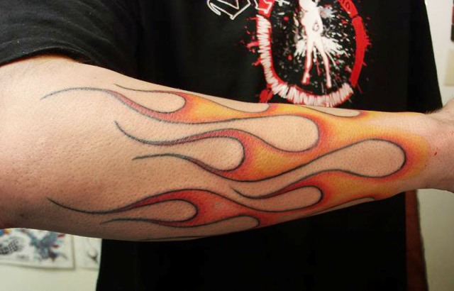 Large flame on the forearm